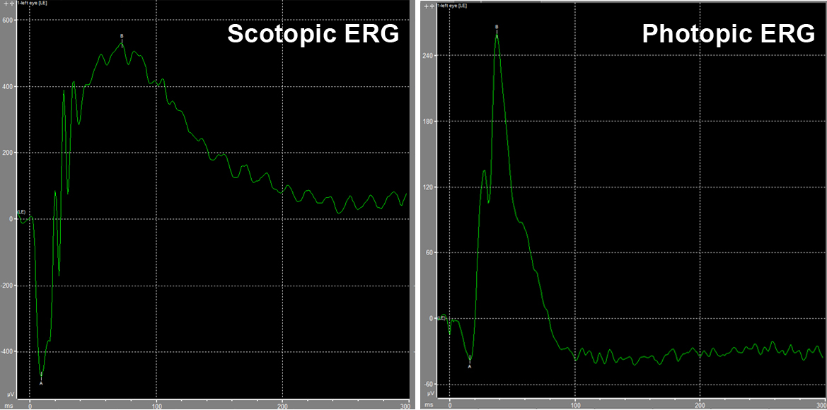 ERG waveforms